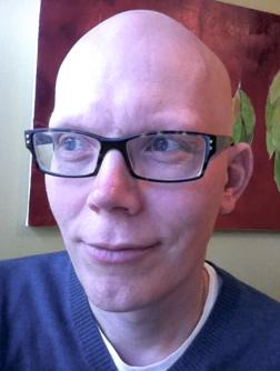 Bald at 44